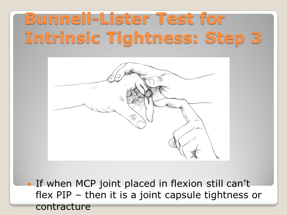 Bunnell-Lister Test for Intrinsic Tightness: Step 3 If when MCP joint placed in flexion still can't flex PIP – then it is a joint capsule tightness or
