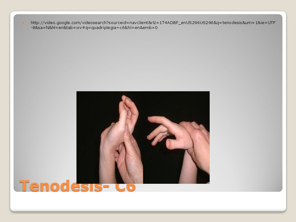 Median Nerve Injury Unable to oppose thumb Unable to make a complete fist Atrophy of thenar eminence Weak wrist flexion Weak pronation of the forearm
