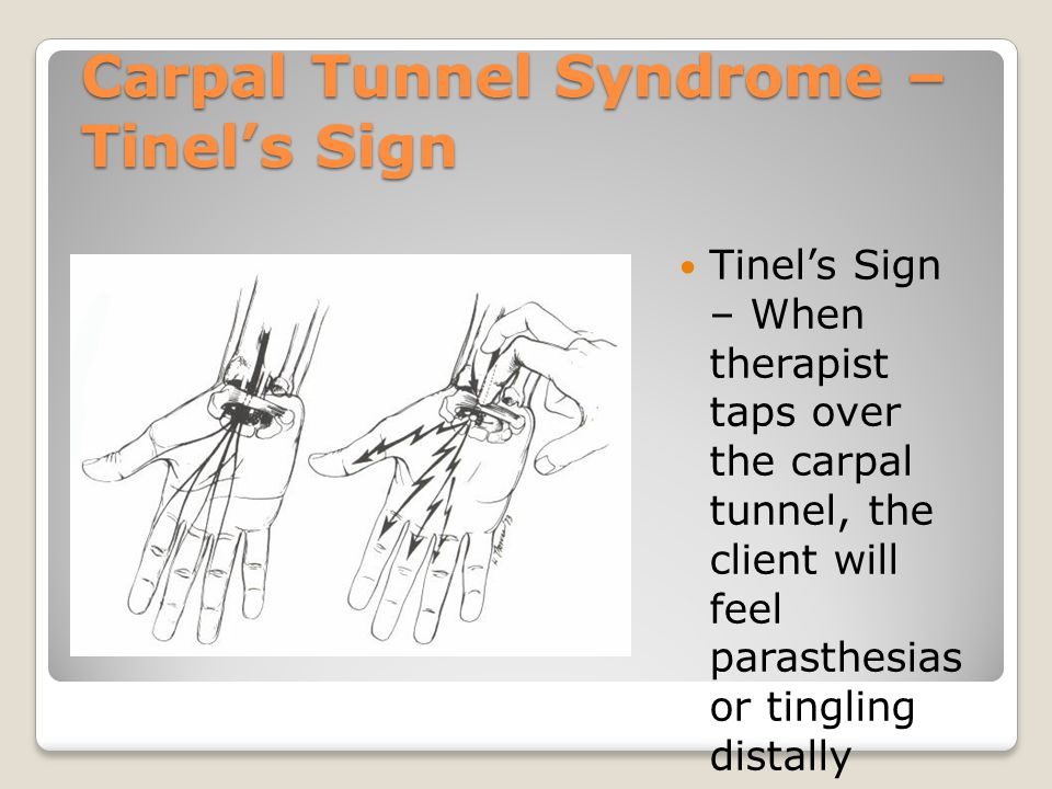 Carpal Tunnel Syndrome – Tinel's Sign Tinel's Sign – When therapist taps over the carpal tunnel, the client will feel parasthesias or tingling distall