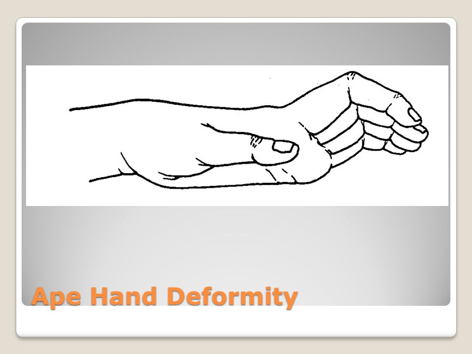 Median Nerve Injury (ape or pope) Low injury = Thumb, index, middle.