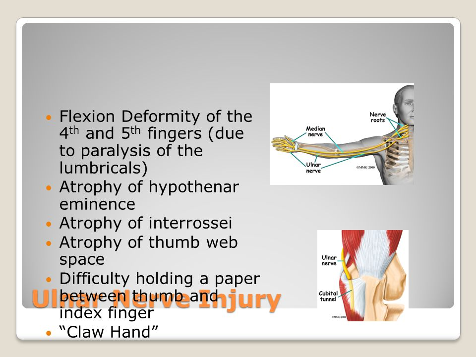 Ulnar Nerve Injury Flexion Deformity of the 4 th and 5 th fingers (due to paralysis of the lumbricals) Atrophy of hypothenar eminence Atrophy of inter