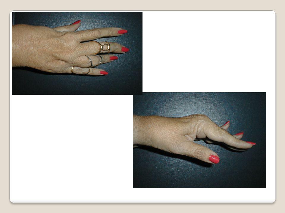 Zig Zag Deformities of the Fingers