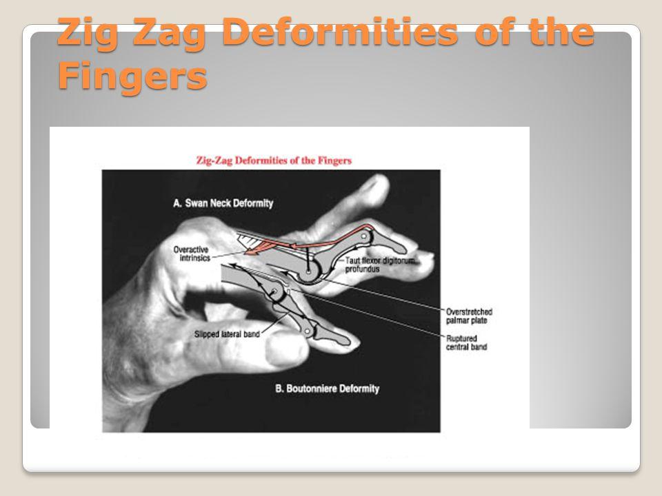 Zig Zag Deformity of the Thumb