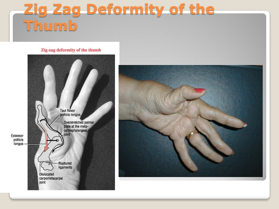 DeQuervain's Disease Tenosynovitis of thumb tendons at the radial styloid process ◦ abductor pollicus longus ◦extensor pollicus brevis Maybe a swelling in the area, tenderness