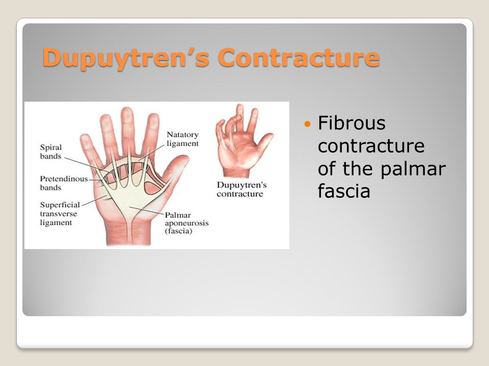 Dupuytren's Contracture Fibrous contracture of the palmar fascia