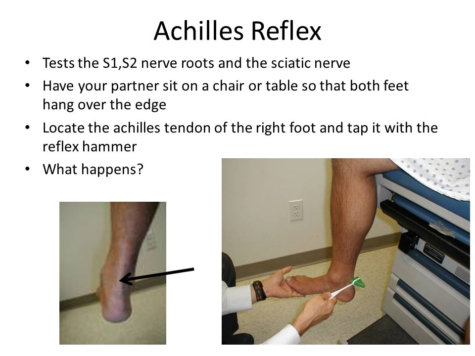Achilles Reflex Tests the S1,S2 nerve roots and the sciatic nerve Have your partner sit on a chair or table so that both feet hang over the edge Locate the achilles tendon of the right foot and tap it with the reflex hammer What happens