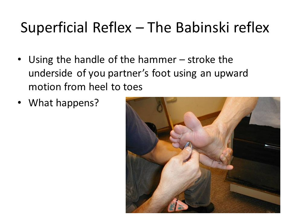 Superficial Reflex – The Babinski reflex Using the handle of the hammer – stroke the underside of you partner's foot using an upward motion from heel to toes What happens