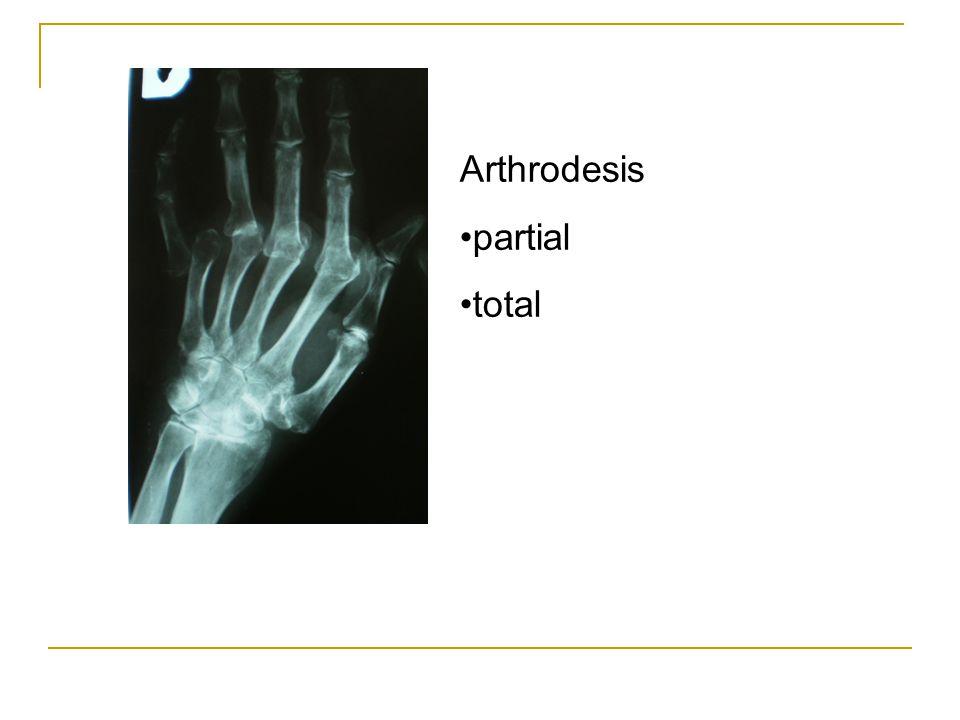 Arthrodesis partial total