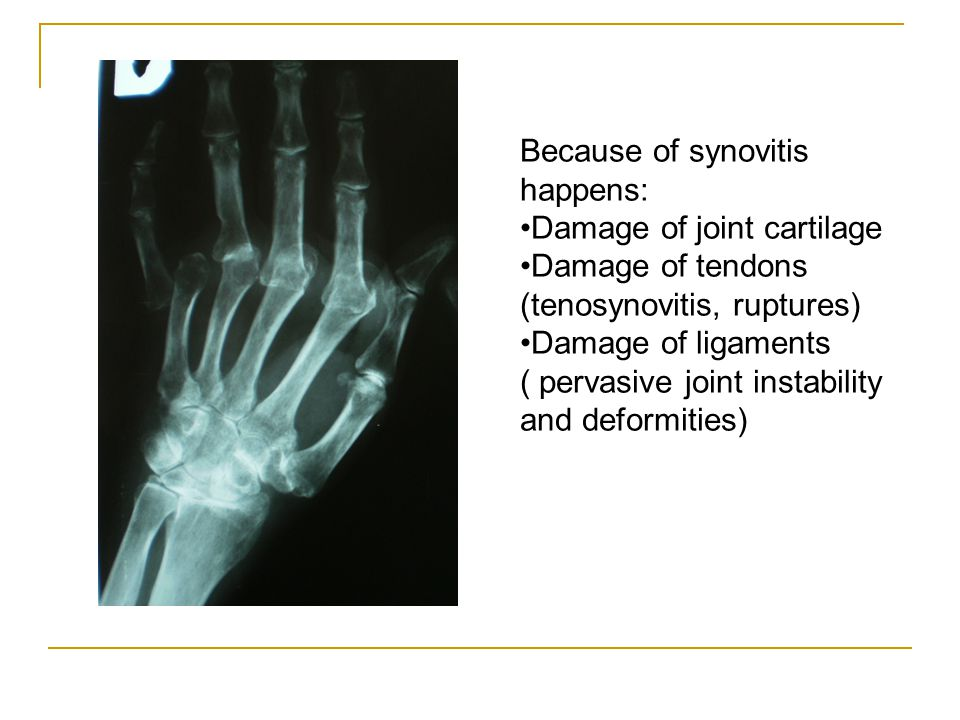 Because of synovitis happens: Damage of joint cartilage Damage of tendons (tenosynovitis, ruptures) Damage of ligaments ( pervasive joint instability and deformities)