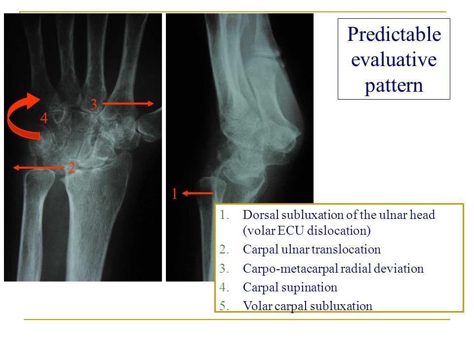 1 2 3 4 Predictable evaluative pattern 1.Dorsal subluxation of the ulnar head (volar ECU dislocation) 2.Carpal ulnar translocation 3.Carpo-metacarpal radial deviation 4.Carpal supination 5.Volar carpal subluxation