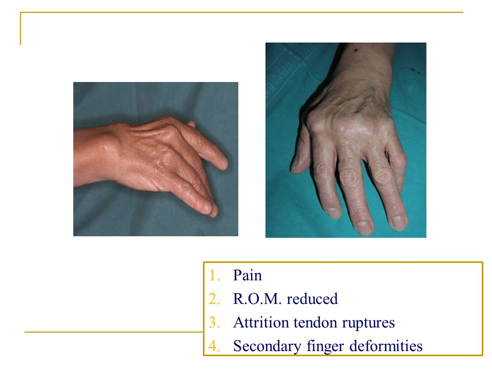 1 3 1.Pain 2.R.O.M. reduced 3.Attrition tendon ruptures 4.Secondary finger deformities