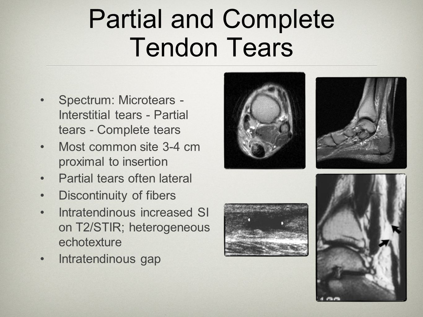 Partial and Complete Tendon Tears Spectrum: Microtears - Interstitial tears - Partial tears - Complete tears Most common site 3-4 cm proximal to inser