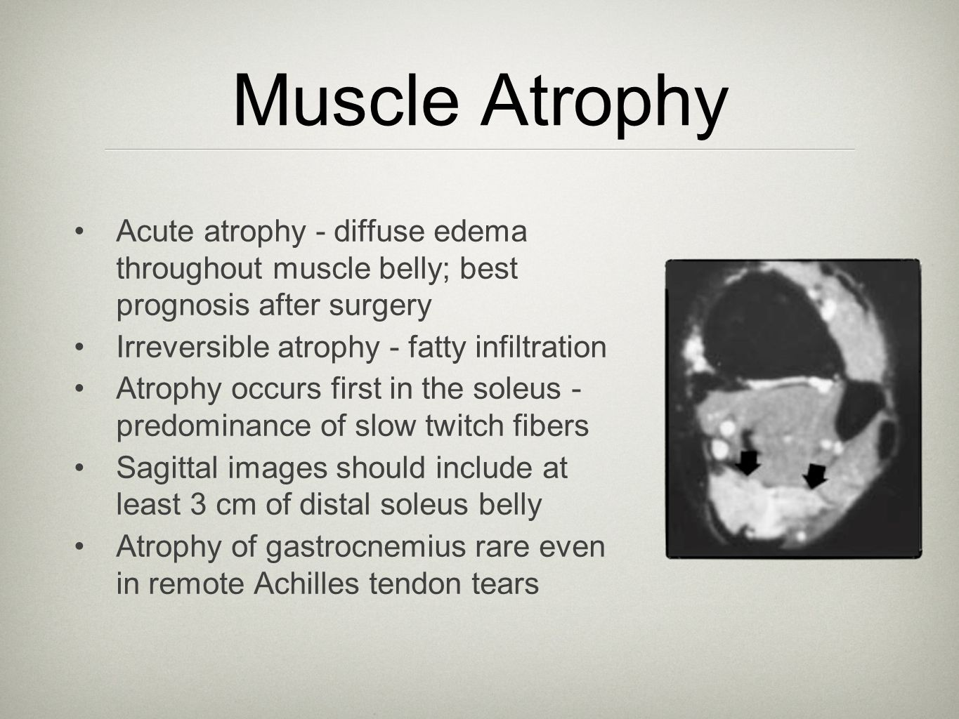 Muscle Atrophy Acute atrophy - diffuse edema throughout muscle belly; best prognosis after surgery Irreversible atrophy - fatty infiltration Atrophy o