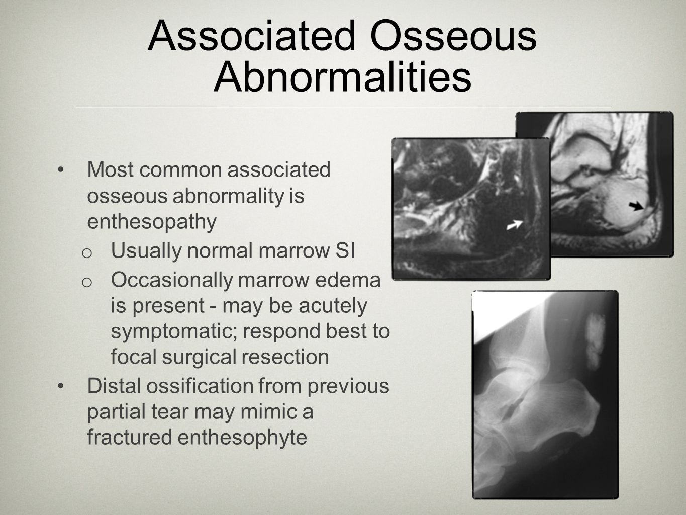 Associated Osseous Abnormalities Most common associated osseous abnormality is enthesopathy o Usually normal marrow SI o Occasionally marrow edema is