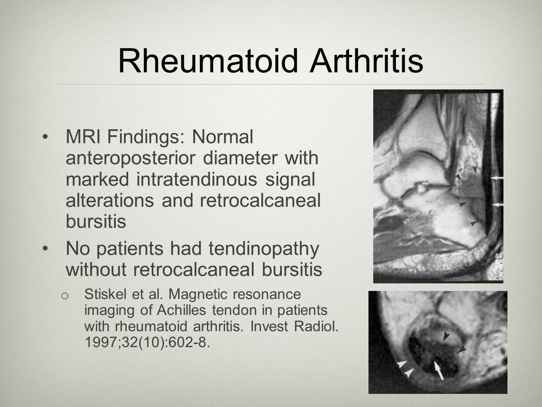 Rheumatoid Arthritis MRI Findings: Normal anteroposterior diameter with marked intratendinous signal alterations and retrocalcaneal bursitis No patien