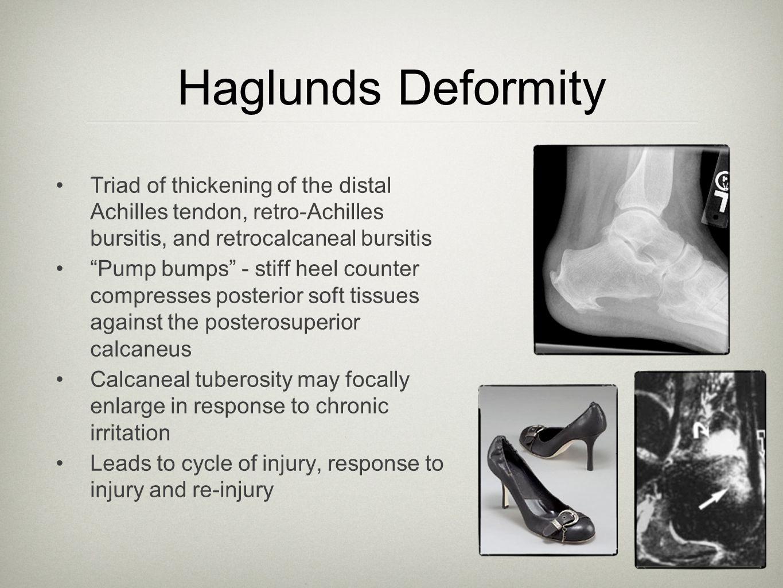 """Haglunds Deformity Triad of thickening of the distal Achilles tendon, retro-Achilles bursitis, and retrocalcaneal bursitis """"Pump bumps"""" - stiff heel c"""