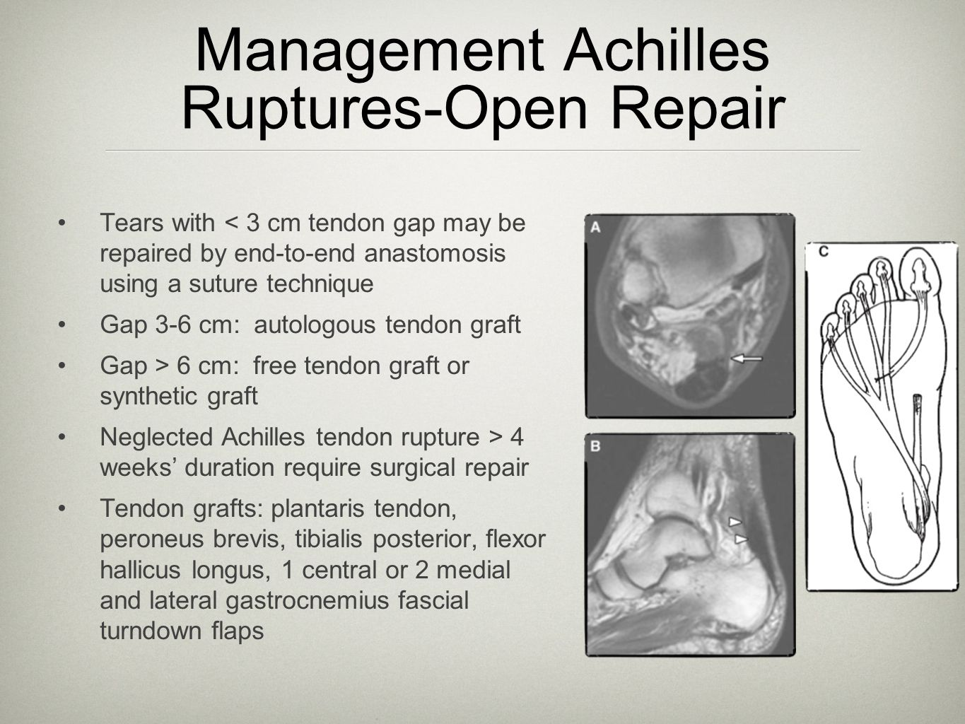 Management Achilles Ruptures-Open Repair Tears with < 3 cm tendon gap may be repaired by end-to-end anastomosis using a suture technique Gap 3-6 cm: a