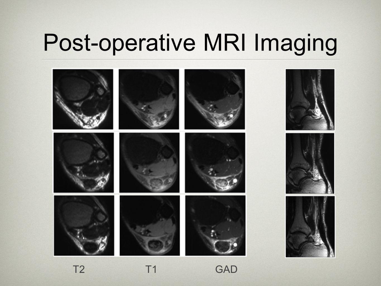 Post-operative MRI Imaging T2 T1 GAD