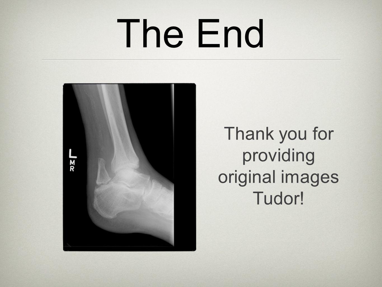 The End Thank you for providing original images Tudor!