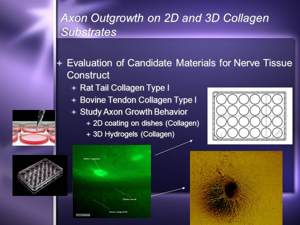 Axon Outgrowth on 2D and 3D Collagen Substrates  Evaluation of Candidate Materials for Nerve Tissue Construct  Rat Tail Collagen Type I  Bovine Tendon Collagen Type I  Study Axon Growth Behavior  2D coating on dishes (Collagen)  3D Hydrogels (Collagen)  Evaluation of Candidate Materials for Nerve Tissue Construct  Rat Tail Collagen Type I  Bovine Tendon Collagen Type I  Study Axon Growth Behavior  2D coating on dishes (Collagen)  3D Hydrogels (Collagen)