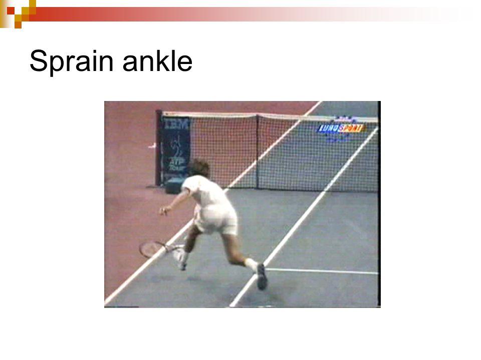 Sprain ankle