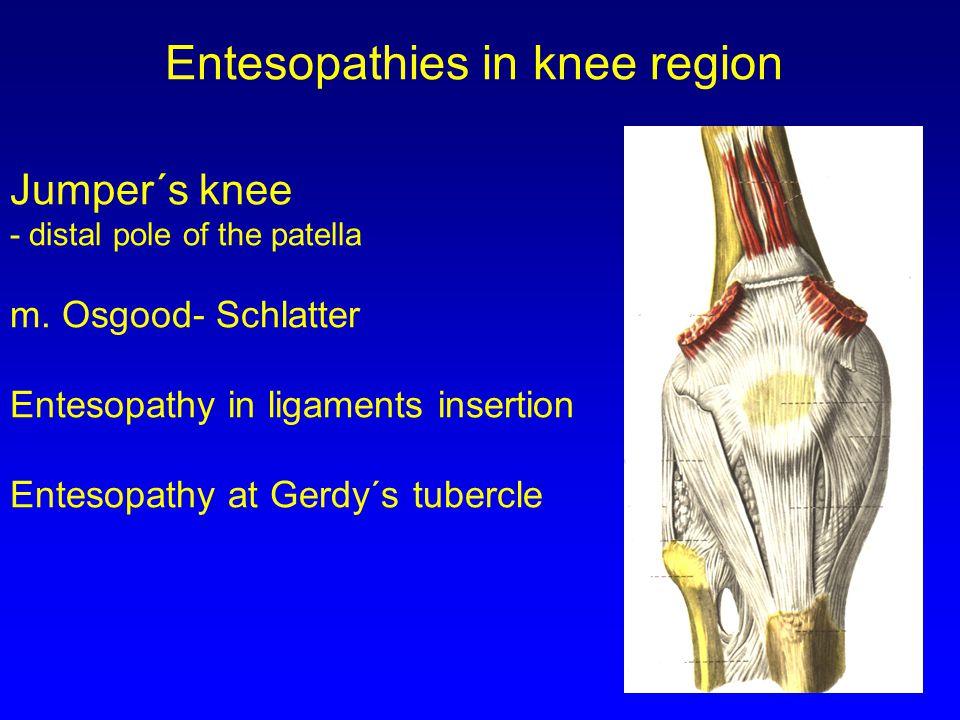Jumper´s knee - distal pole of the patella m.