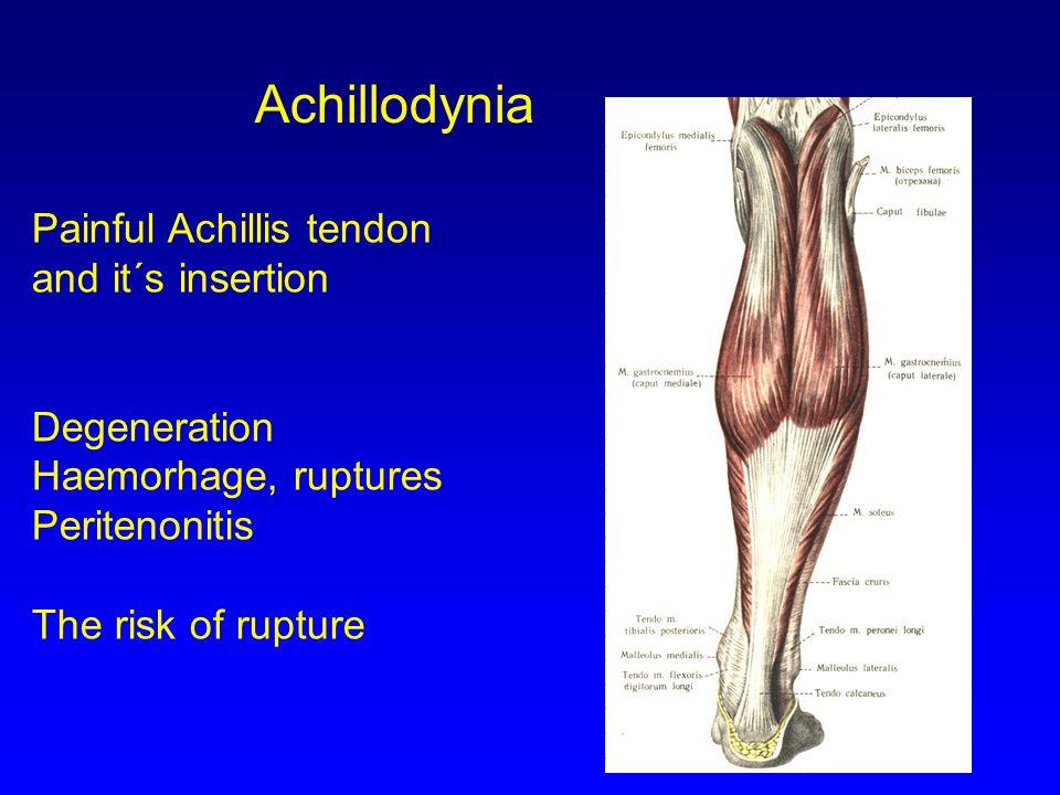 Achillodynia Painful Achillis tendon and it´s insertion Degeneration Haemorhage, ruptures Peritenonitis The risk of rupture