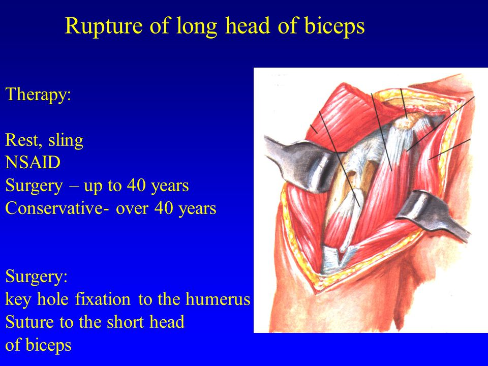 Rupture of long head of biceps Therapy: Rest, sling NSAID Surgery – up to 40 years Conservative- over 40 years Surgery: key hole fixation to the humerus Suture to the short head of biceps