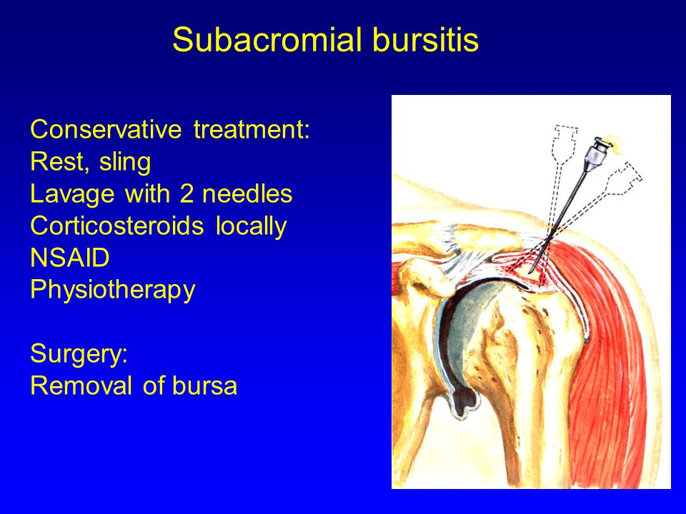 Conservative treatment: Rest, sling Lavage with 2 needles Corticosteroids locally NSAID Physiotherapy Surgery: Removal of bursa Subacromial bursitis