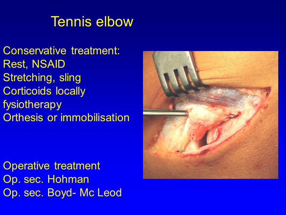 Tennis elbow Conservative treatment: Rest, NSAID Stretching, sling Corticoids locally fysiotherapy Orthesis or immobilisation Operative treatment Op.