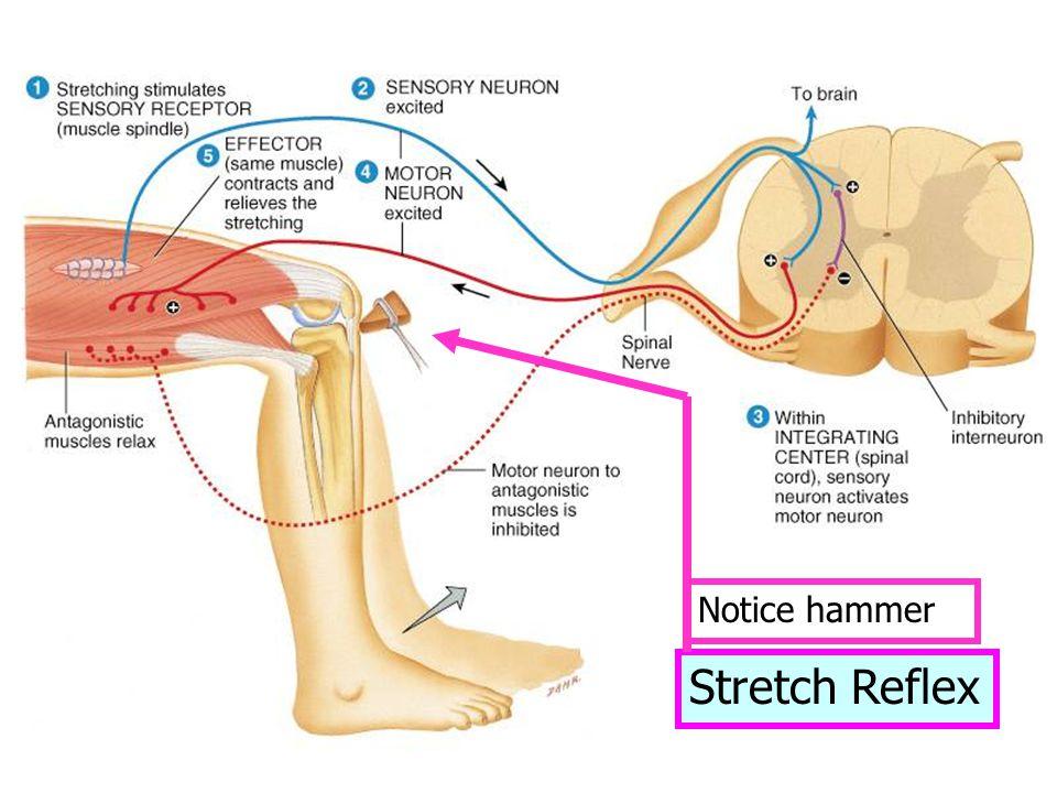 Stretch Reflex Notice hammer