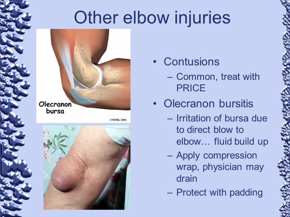 Other elbow injuries Contusions –Common, treat with PRICE Olecranon bursitis –Irritation of bursa due to direct blow to elbow… fluid build up –Apply c