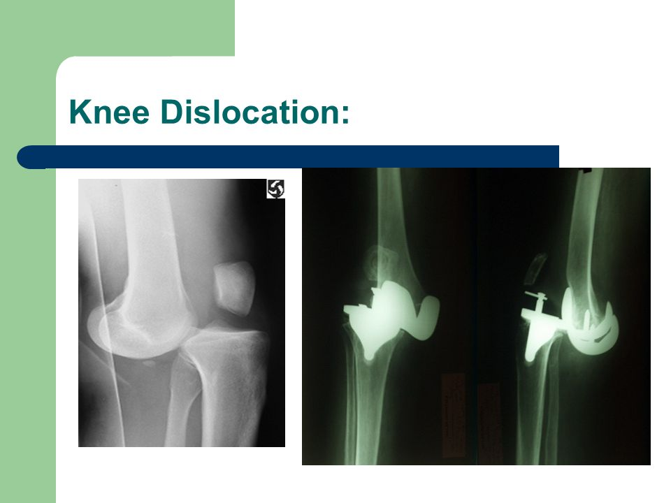 Knee Dislocation: