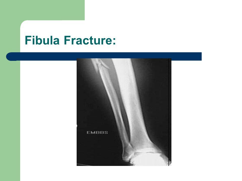 Fibula Fracture: