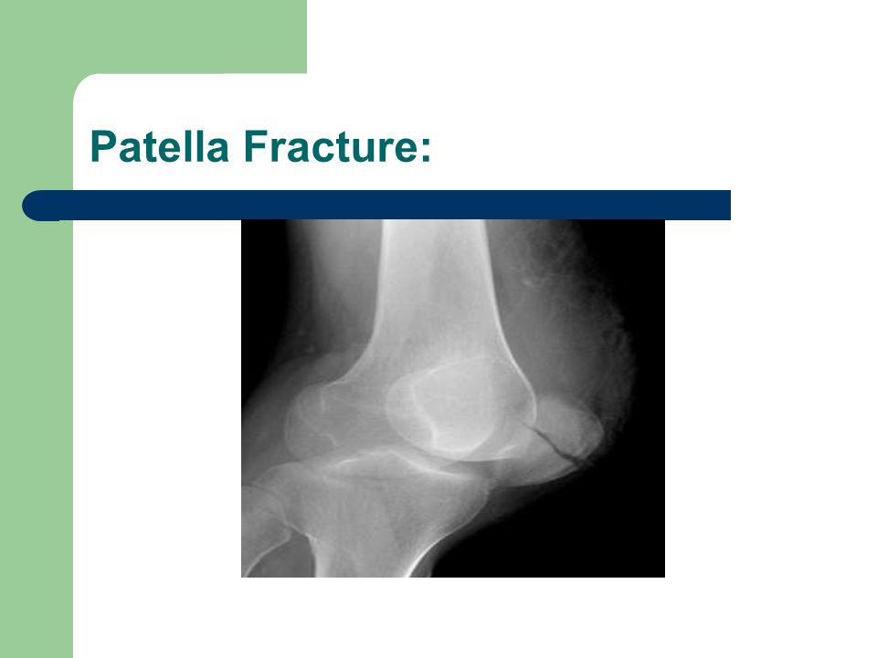Lateral Tibial Platea Fx: