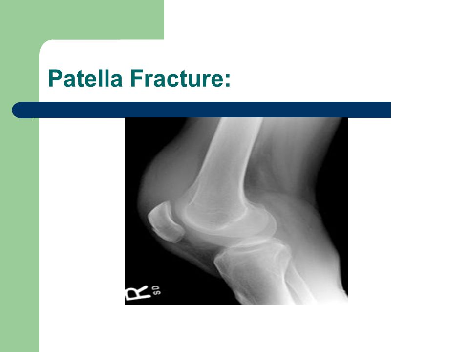 Patella Fracture Tx: non-displaced patella fracture w/intact extensor mechanism is treated w/knee immobilizer, rest, ice, elevation, NSAIDS/Opioids, then long leg cast for 6 weeks.