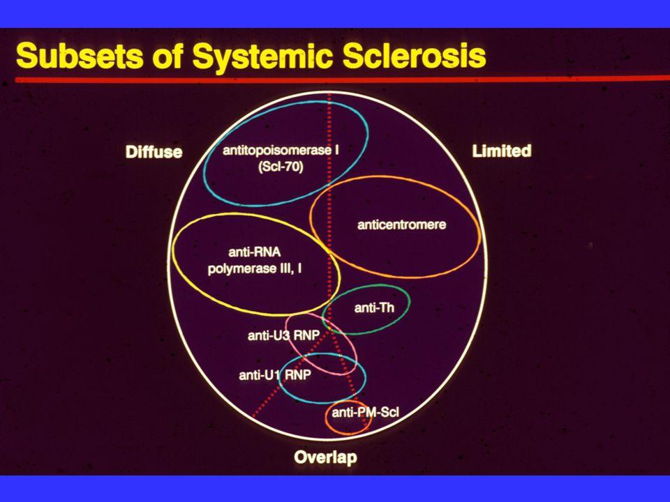 Sclerodactyly