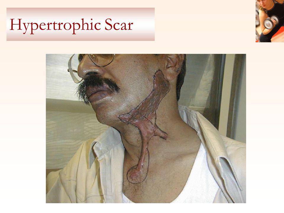 Hypertrophic Scar