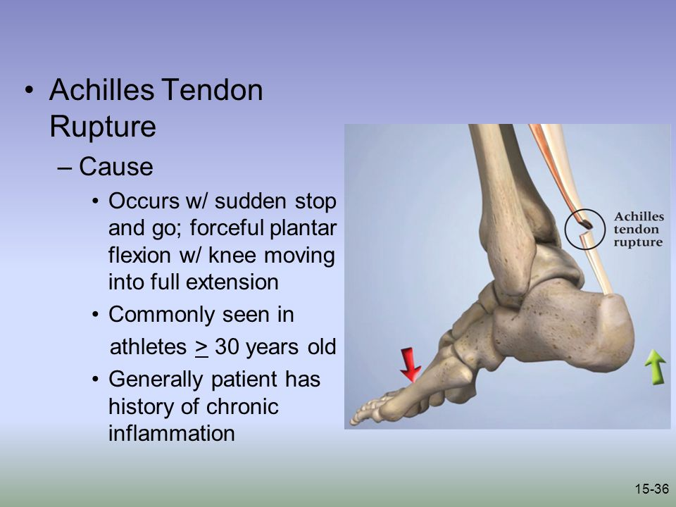 15-36 Achilles Tendon Rupture –Cause Occurs w/ sudden stop and go; forceful plantar flexion w/ knee moving into full extension Commonly seen in athletes > 30 years old Generally patient has history of chronic inflammation