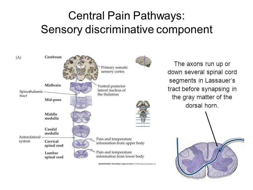 Central Pain Pathways: Sensory discriminative component The axons run up or down several spinal cord segments in Lassauer's tract before synapsing in
