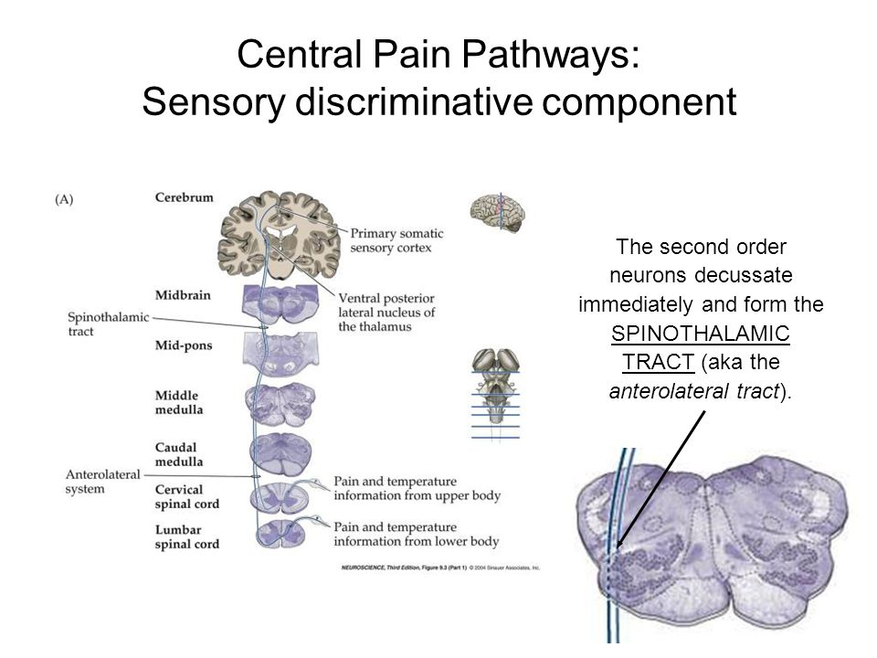 Central Pain Pathways: Sensory discriminative component The second order neurons decussate immediately and form the SPINOTHALAMIC TRACT (aka the anter