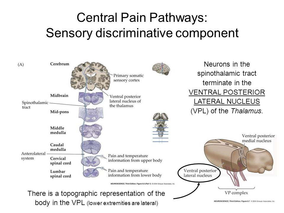 Central Pain Pathways: Sensory discriminative component Neurons in the spinothalamic tract terminate in the VENTRAL POSTERIOR LATERAL NUCLEUS (VPL) of