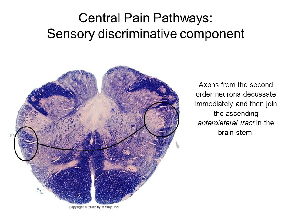 Central Pain Pathways: Sensory discriminative component Axons from the second order neurons decussate immediately and then join the ascending anterola