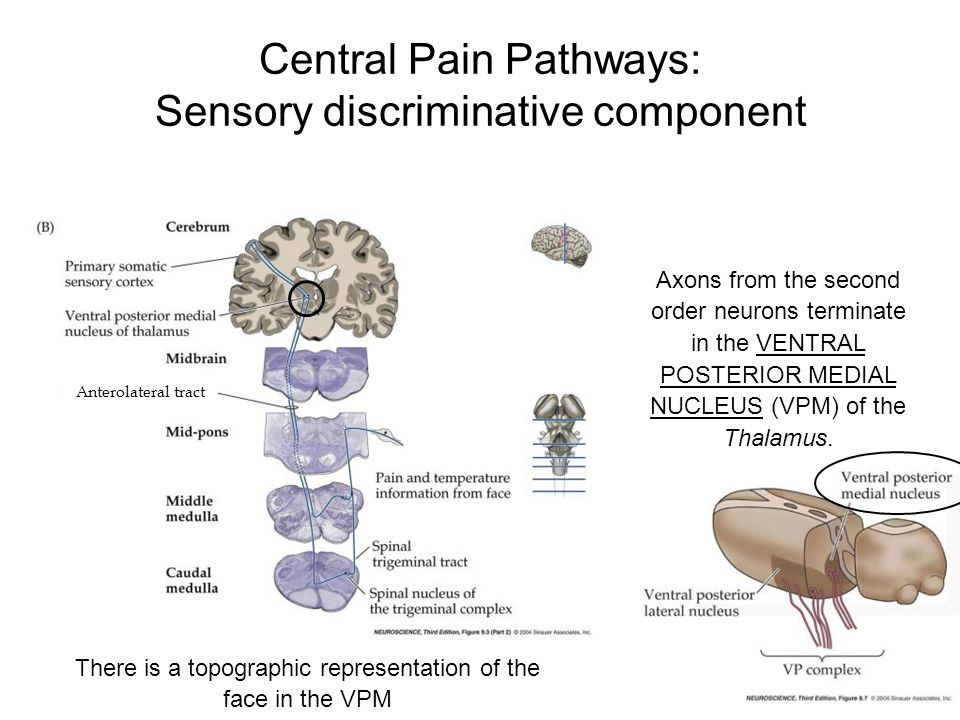 Central Pain Pathways: Sensory discriminative component Axons from the second order neurons terminate in the VENTRAL POSTERIOR MEDIAL NUCLEUS (VPM) of