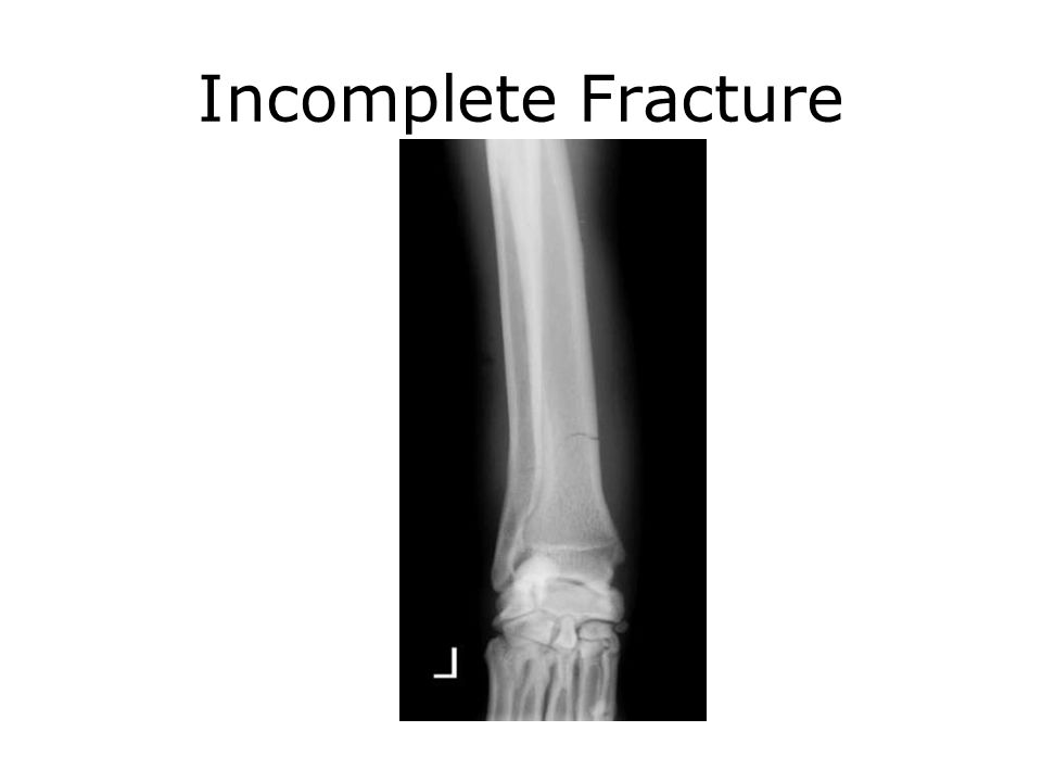 Incomplete Fracture