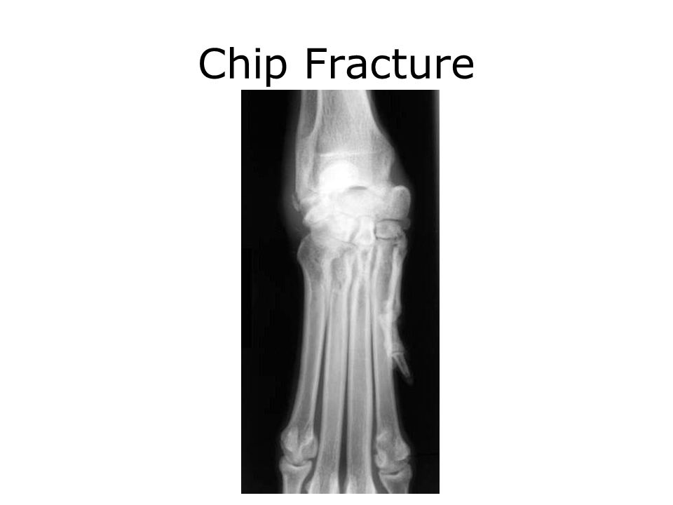 Chip Fracture