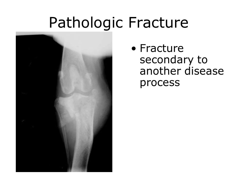 Pathologic Fracture Fracture secondary to another disease process
