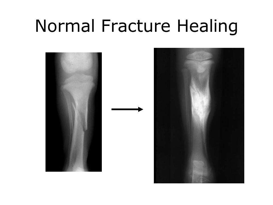 Normal Fracture Healing