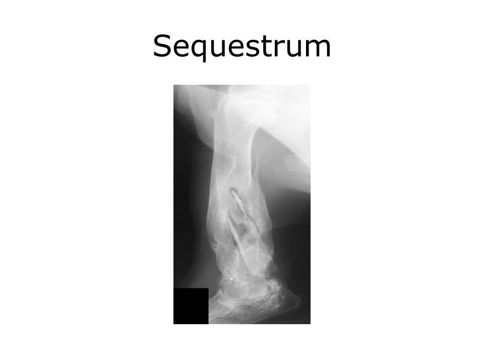 Sequestrum