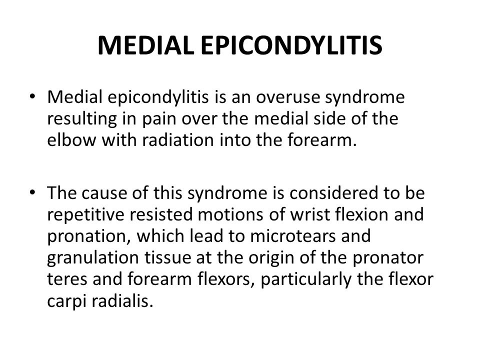 MEDIAL EPICONDYLITIS Medial epicondylitis is an overuse syndrome resulting in pain over the medial side of the elbow with radiation into the forearm.
